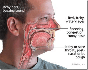 symptoms_for_hay_fever